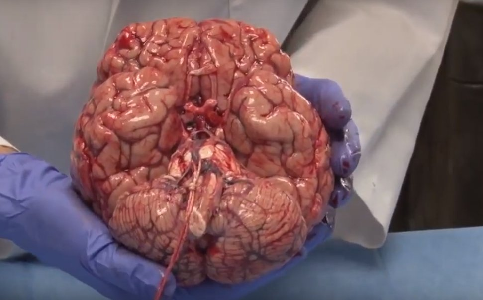 This Video Of A Freshly Removed Human Brain Will Leave You In Awe Of ...