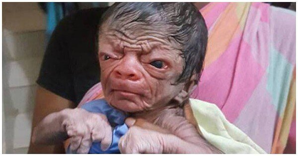Baby With Rare Genetic Disorder Born In Bangladesh. He ...