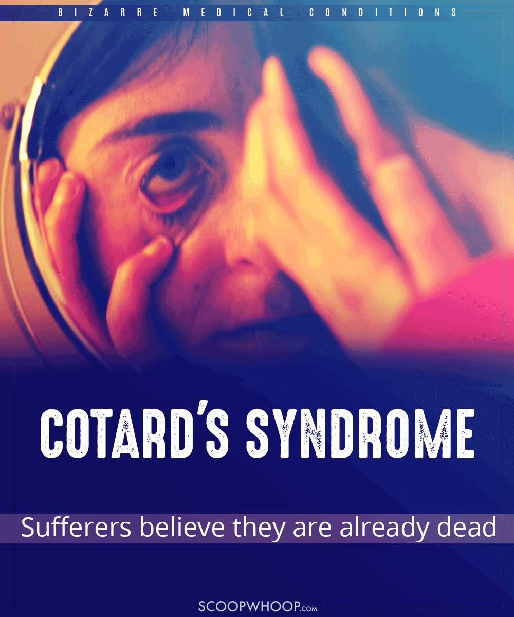 20 weird mental disorders and syndromes