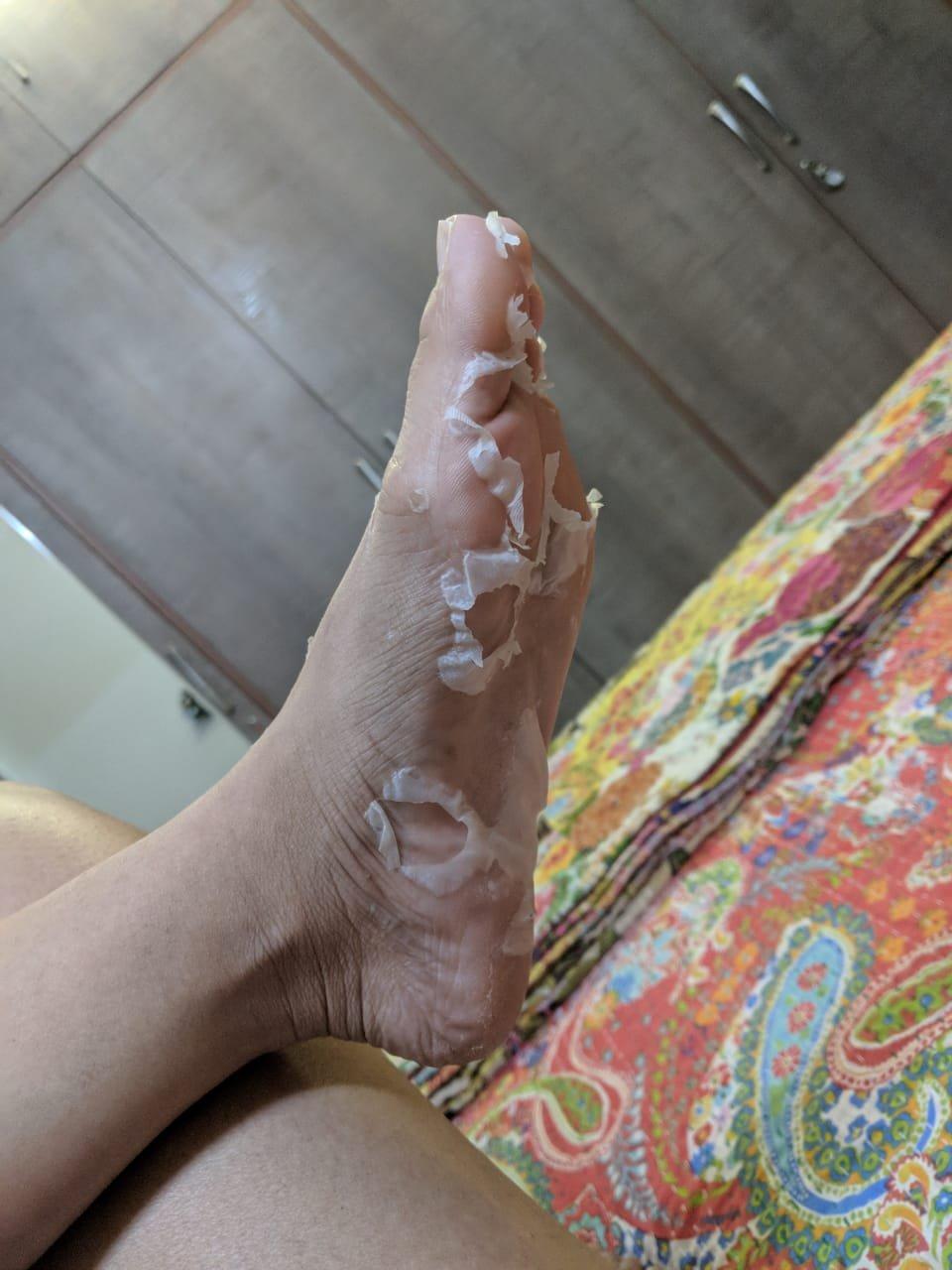 I Tried This Trending Korean Foot Peel