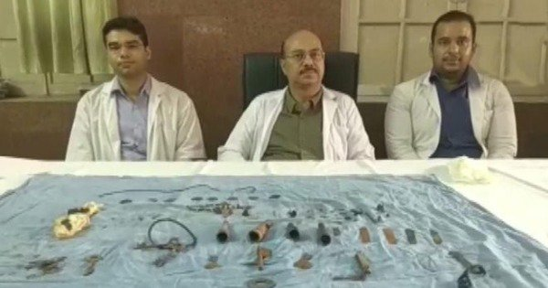 Doctors Remove More Than 80 Items Including Coins, 'Chillum' & Nails From A Man's Body In Udaipur
