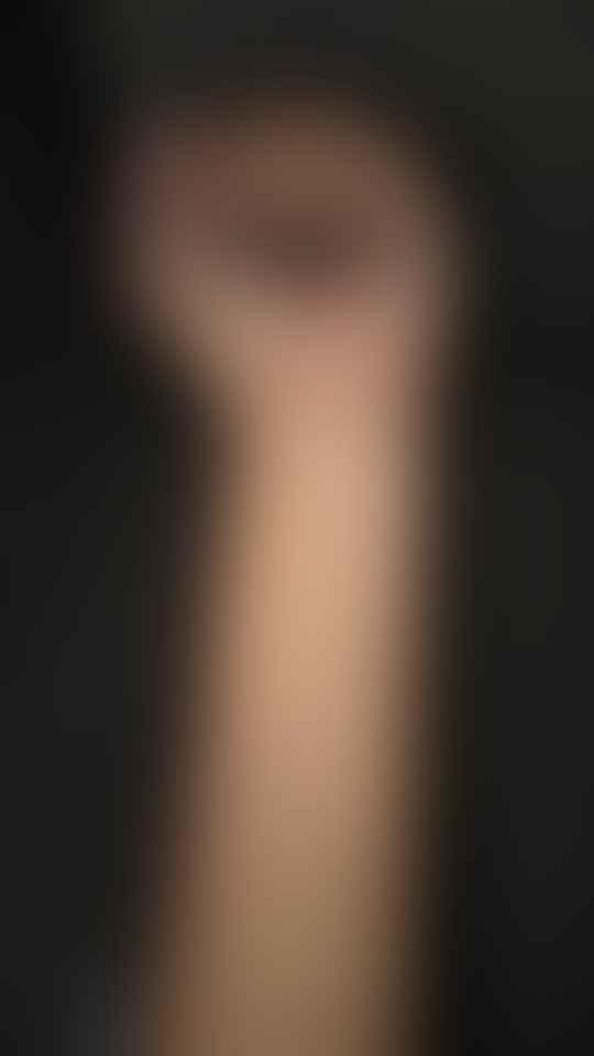scars on mansi's hand
